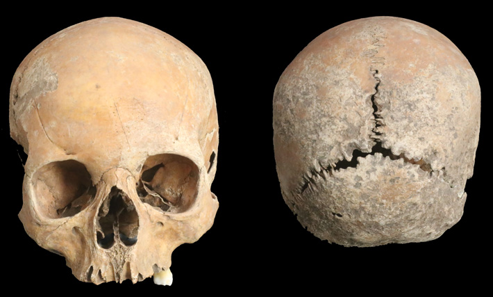 分析された八~九世紀頃のアングロ・サクソン人少女の頭蓋骨。